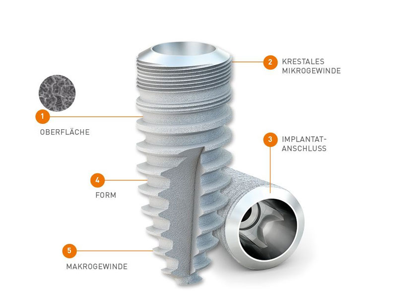Implants Medentica